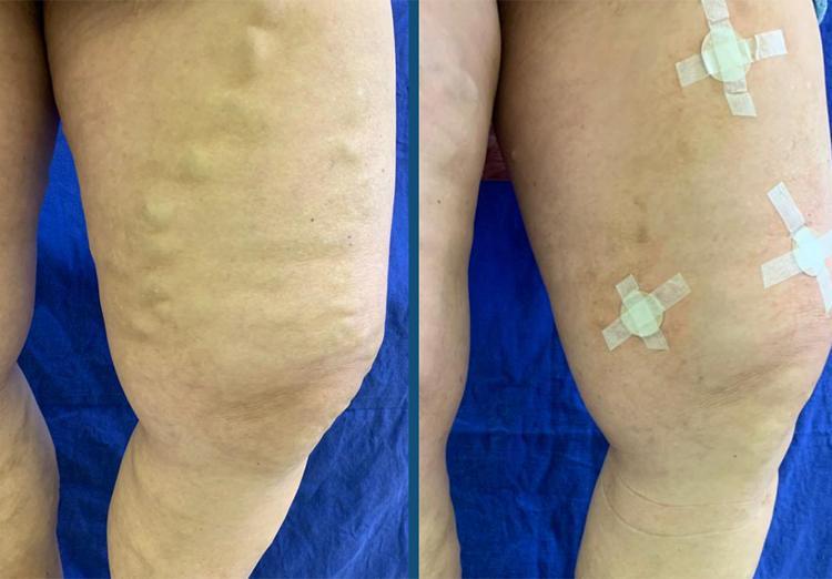 Tratamentos de Varizes sem cirurgia